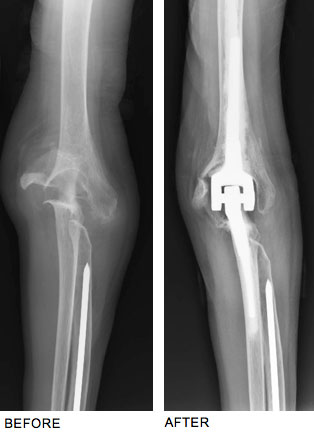 Dr. Steinberg Performs Total Elbow Joint Replacement to Successfully Treat Rheumatoid Arthritis Pain