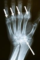 Rheumatologist Recommended Wrist Surgeon Dr. Steinberg Performs Hand and Wrist Reconstructive Surgery