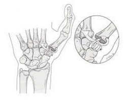 Orthopedic Doctor Steinberg Successfully Treats Thumb Arthritis with Joint Reconstruction