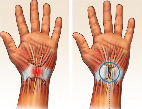 Dr. Steinberg Uses Endoscopic Carpal Tunnel Releases to Treat Hand Pain and Tingling in the Fingers